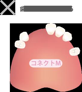 歯が数本残っている