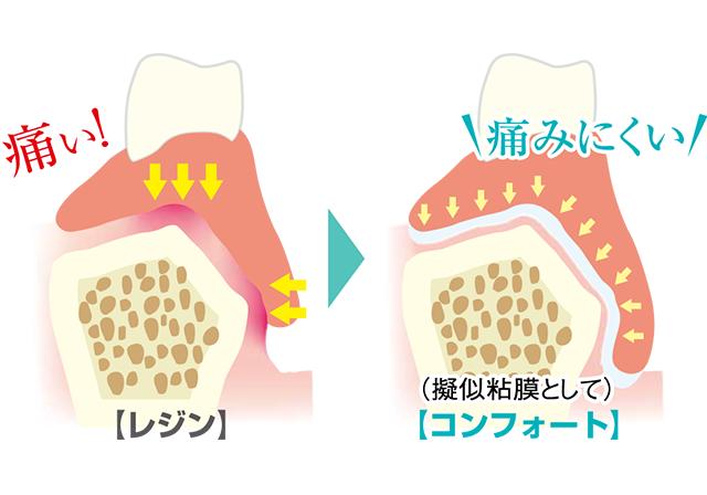 やわらかいクッションが総入れ歯の痛みや噛めないを解消