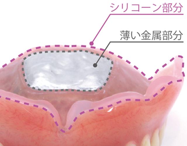 総入れ歯の違和感を緩和