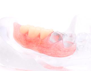 013夲〜歯を失った方へ幅広くご利用が可能