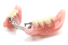 3本以上歯が抜けたとき、目立たず噛める