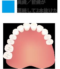 奥歯/前歯が連続して2本抜けた