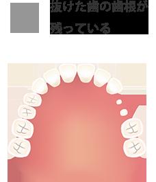 抜けた歯の歯根が残っている