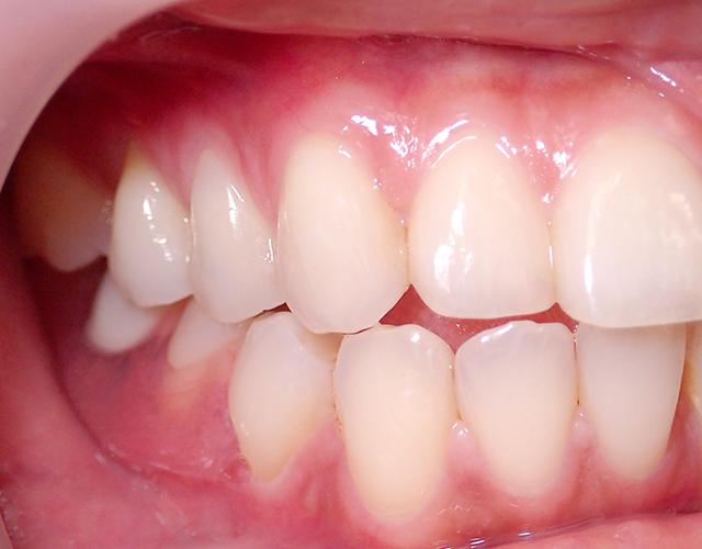 歯ぐきと同色の素材で自然な見た目